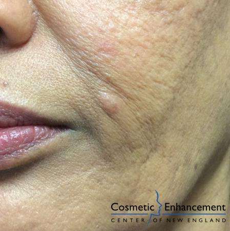Ellman Mole Removal: Patient 1 - Before Image