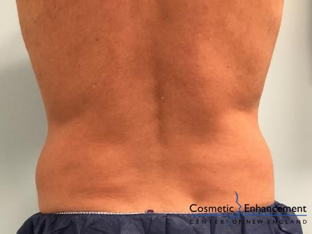 CoolSculpting®: Patient 20 - Before Image