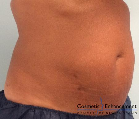 CoolSculpting®: Patient 18 - After Image