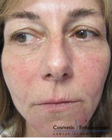 Vampire Facelift: Patient 4 - Before Image
