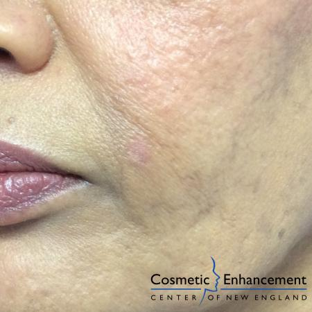 Ellman Mole Removal: Patient 1 - After Image