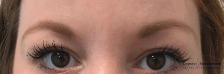 Microblading: Patient 4 - Before Image 1