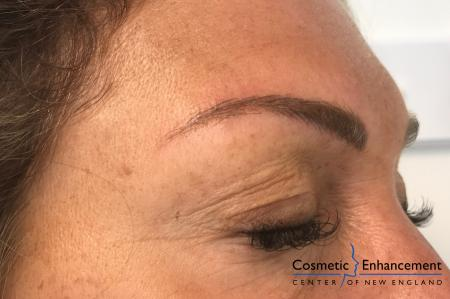 Microblading: Patient 6 - After Image