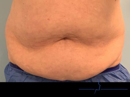CoolSculpting®: Patient 4 - After Image