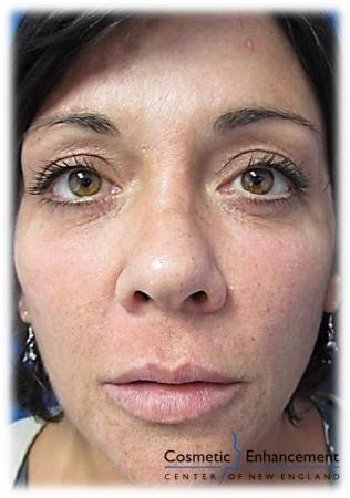 Vampire Facelift: Patient 3 - After Image