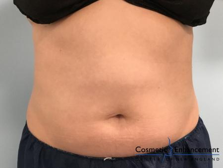 CoolSculpting®: Patient 21 - After Image