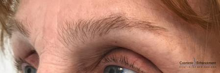 Microblading: Patient 5 - Before and After Image 3