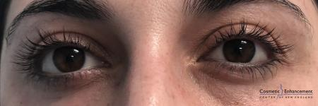 Lash Lift And Tint: Patient 2 - Before Image