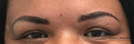 Microblading: Patient 2 - After Image 1