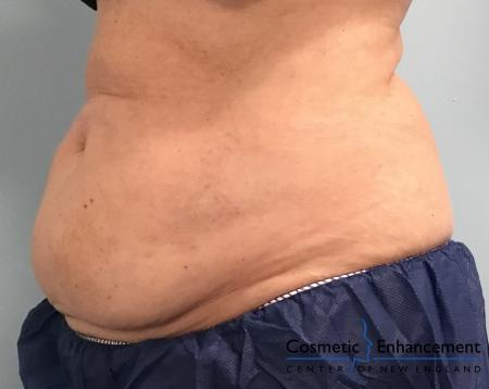 CoolSculpting®: Patient 11 - Before Image