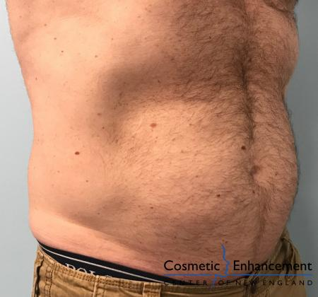 CoolSculpting®: Patient 17 - After Image