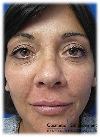 Vampire Facelift: Patient 3 - Before Image