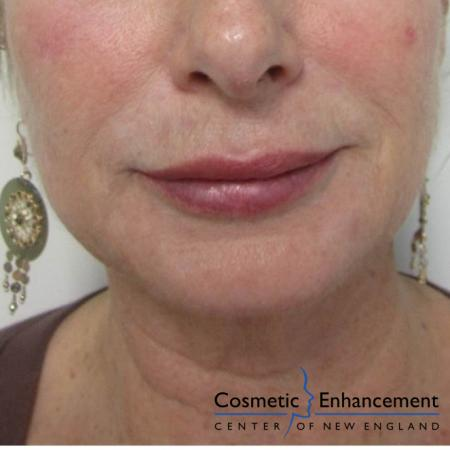 Vampire Facelift: Patient 5 - After Image