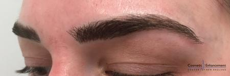 Microblading: Patient 1 - After Image 3