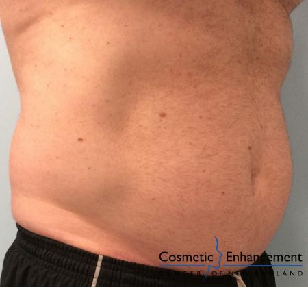 CoolSculpting®: Patient 17 - Before Image