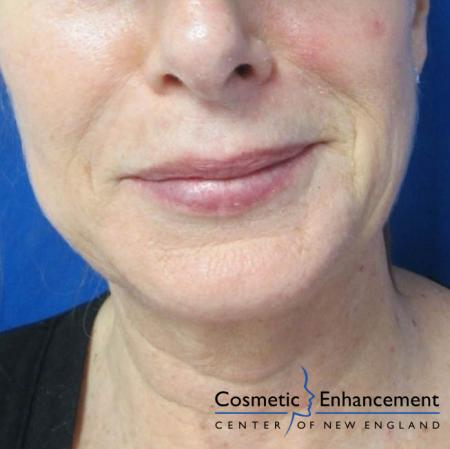 Vampire Facelift: Patient 5 - Before Image