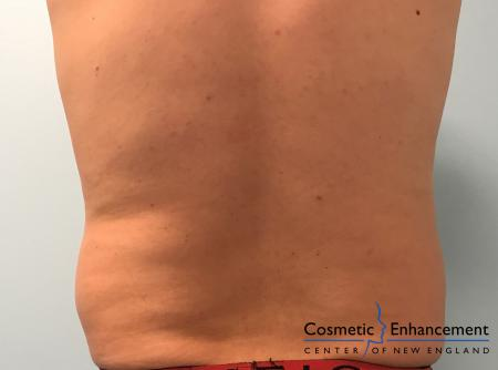 CoolSculpting®: Patient 7 - Before Image