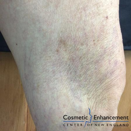 Sclerotherapy: Patient 2 - After Image