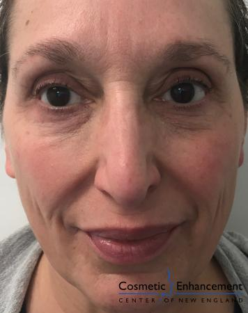 Fillers: Patient 3 - After Image