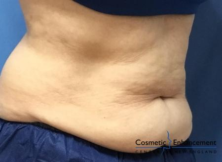 CoolSculpting®: Patient 16 - Before Image