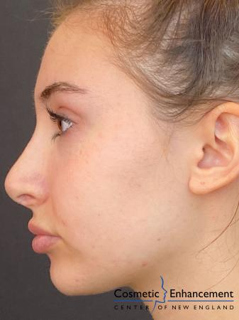 Fillers: Patient 6 - Before Image