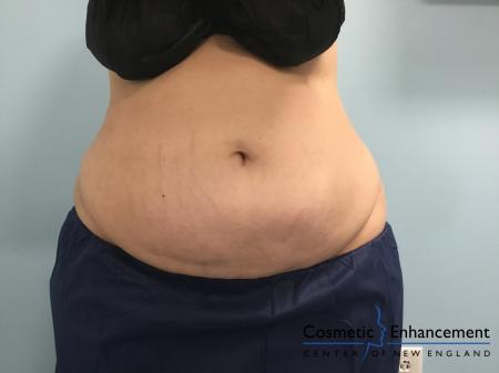 CoolSculpting®: Patient 15 - After Image