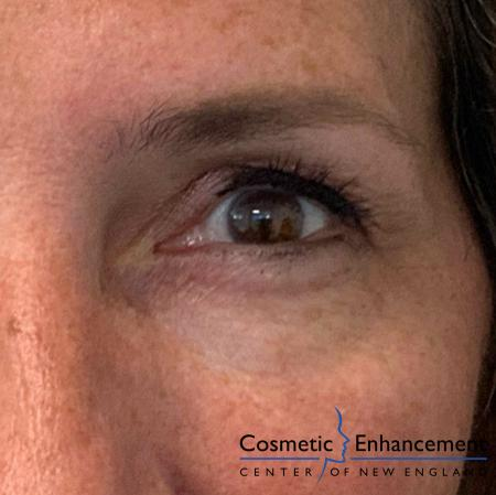 Ultherapy®: Patient 5 - After Image 2