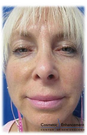 Vampire Facelift: Patient 1 - After Image