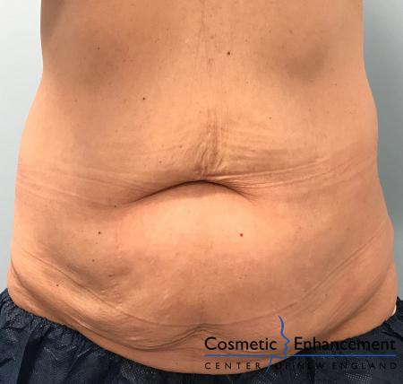 CoolSculpting®: Patient 14 - After Image