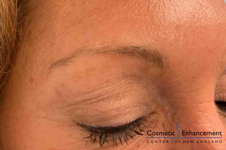 Microblading: Patient 6 - Before Image