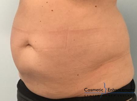 CoolSculpting®: Patient 3 - After Image