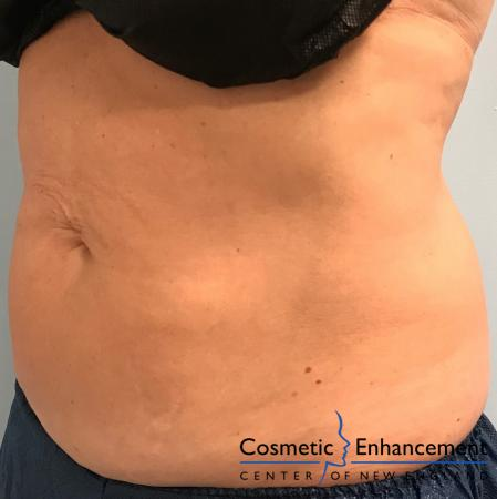 CoolSculpting®: Patient 8 - After Image