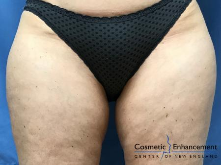 CoolSculpting®: Patient 24 - Before Image