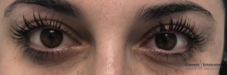 Lash Lift And Tint: Patient 2 - After Image