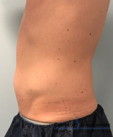CoolSculpting®: Patient 13 - After Image