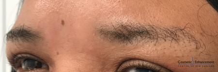 Microblading: Patient 2 - Before and After Image 2