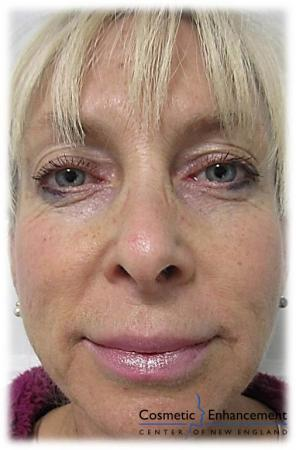 Vampire Facelift: Patient 1 - Before Image