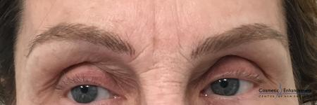 Microblading: Patient 5 - After Image