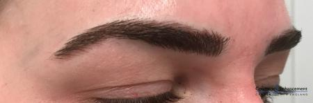 Microblading: Patient 1 - After Image 2