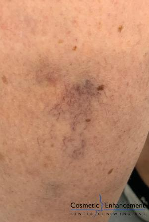 Sclerotherapy: Patient 1 - After Image