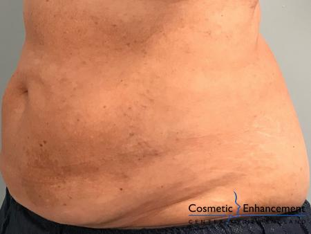 CoolSculpting®: Patient 11 - After Image