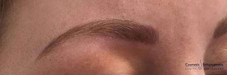 Microblading: Patient 4 - After Image 2