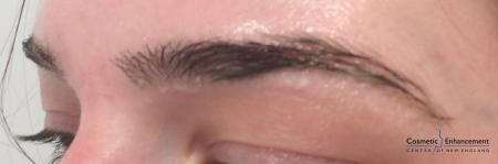 Microblading: Patient 1 - Before and After Image 3