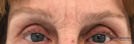 Microblading: Patient 5 - Before Image