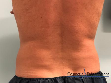 CoolSculpting®: Patient 20 - After Image