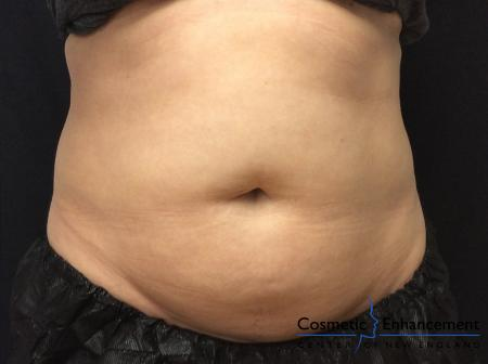 CoolSculpting®: Patient 21 - Before Image