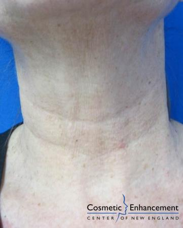 Vampire Facelift: Patient 5 - Before and After Image 2