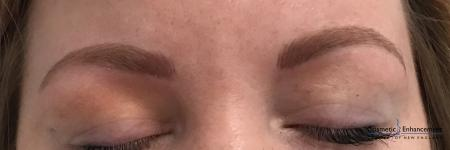 Microblading: Patient 4 - After Image 1