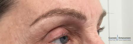 Microblading: Patient 5 - After Image 2