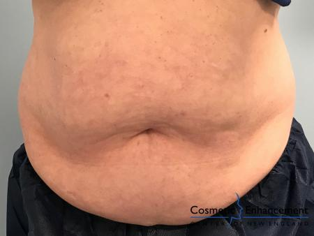 CoolSculpting®: Patient 4 - Before Image